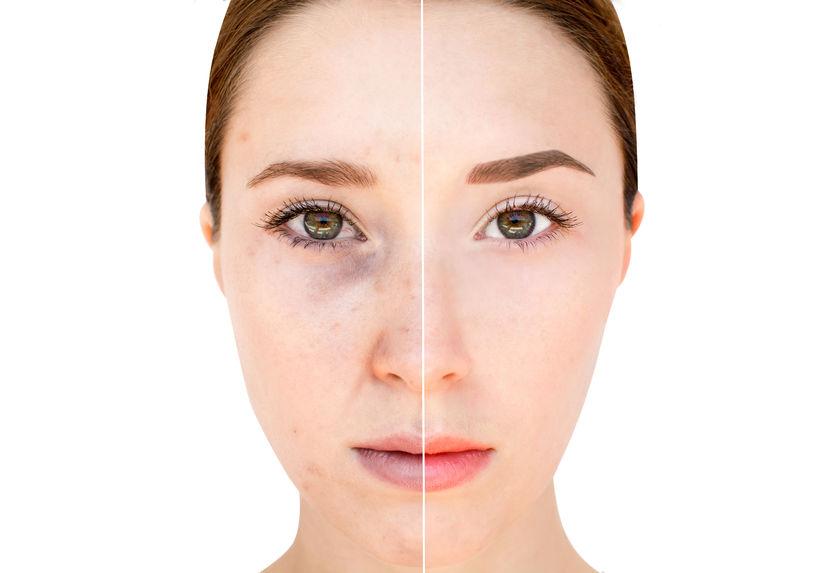 lichte huid, pigmentvlekken verwijderen